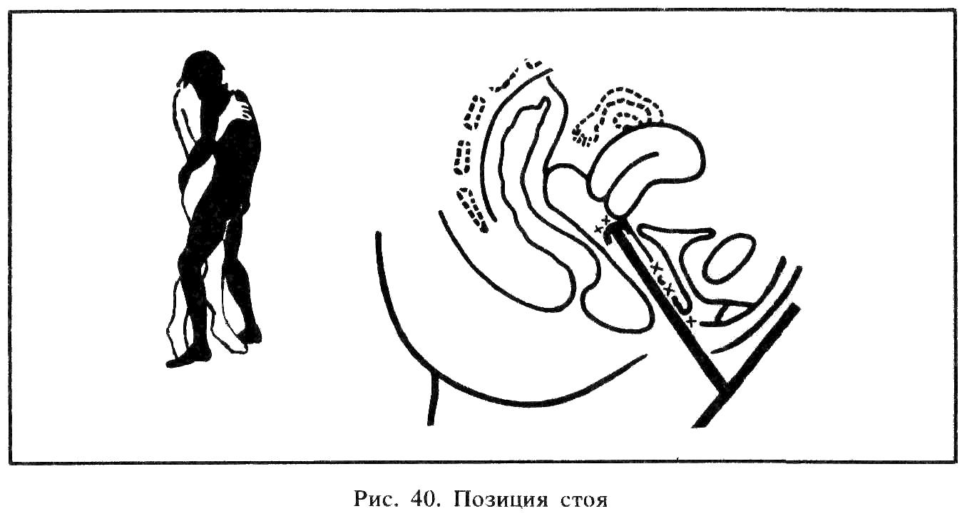 Форма влагалища и позы в сексе фото 366-91