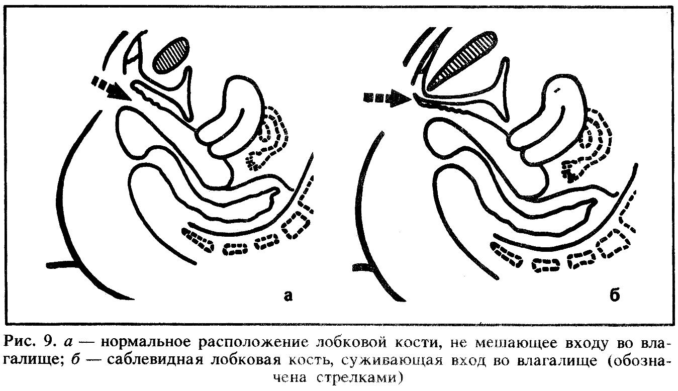 Кость Лобковая