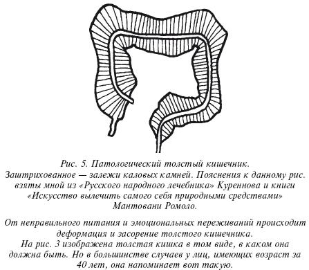 геннадий малахов очищение организма от слизи