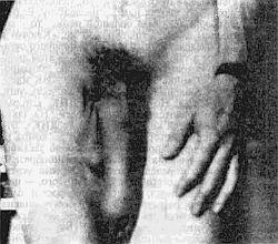 Гэри Гриффин - Как увеличить размеры мужского полового члена краткое содержание