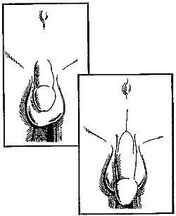 Гриффин Гэри - Как увеличить размеры мужского полового члена краткое содержание