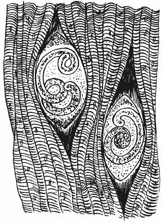 личинки трихинеллы в