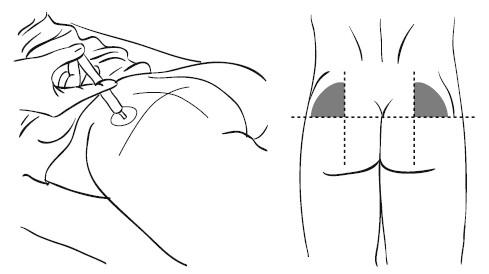 Чаще всего для внутримышечных инъекций используют иглы толщиной 0,8–1...