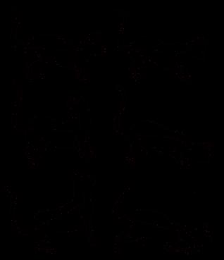 Сколиоз грудо поясничного отдела 2