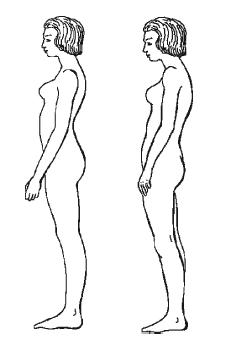 Гипертония лечение чесноком