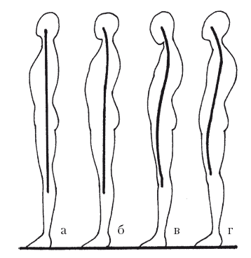 К какому врачу обращаться при кривой спине