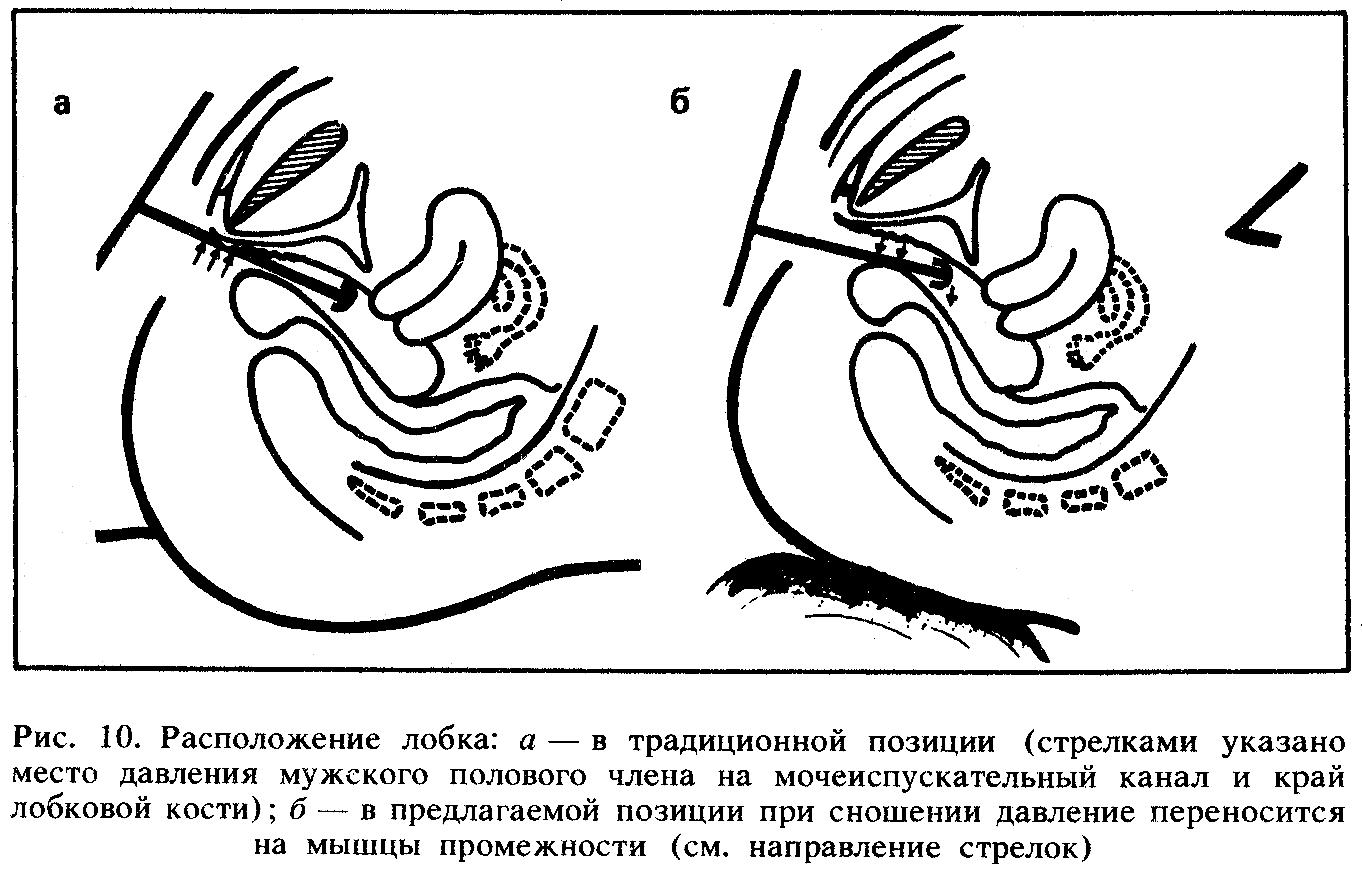 Лобковая Кость Влагалище